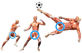 Pubalgie sportif